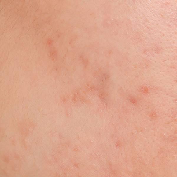 Trądzik hormonalny | Jak leczyć trądzik hormonalny? - La Roche-Posay