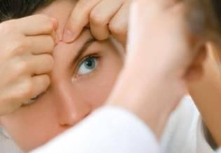 wyciskanie pryszczy | Pryszcze: wyciskać czy nie wyciskać? - La Roche-Posay