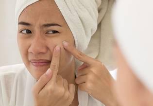 Retinoidy na trądzik | Retinoidy na trądzik - jak działają, kiedy można zauważyć efekty? - La Roche-Posay
