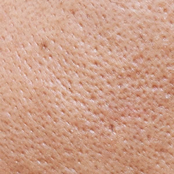 Pory na twarzy | Co zwęża pory? Czyli sprawdzone sposoby na piękną skórę twarzy! - La-Roche Posay
