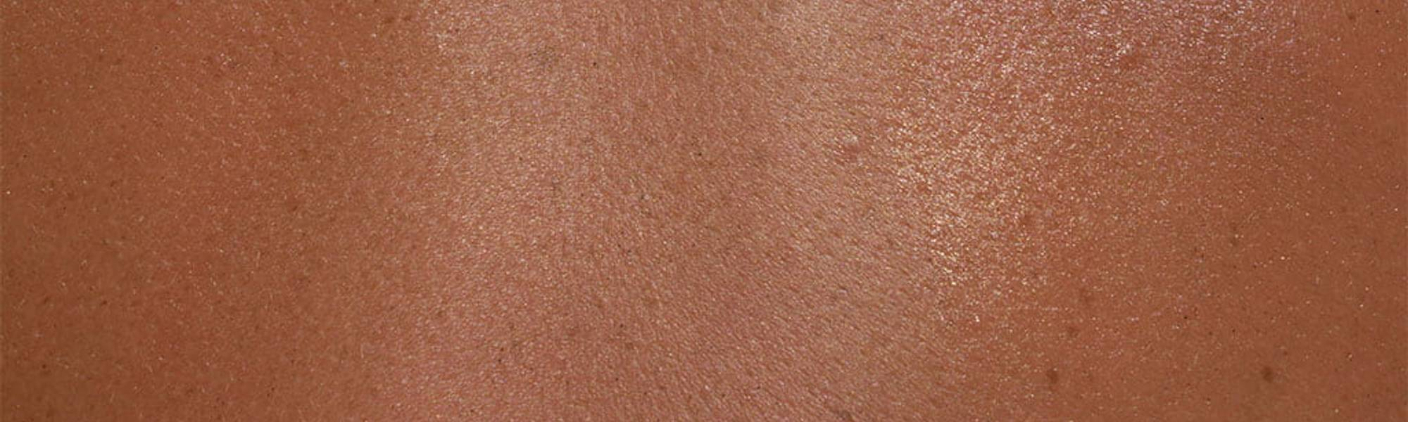 Alergiczna Alergia skórna skóra wrażliwa i | La Roche Posay
