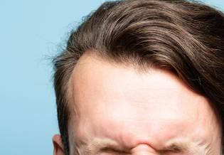 Wrażliwa Włosy i skóra głowy podstawy | La Roche Posay
