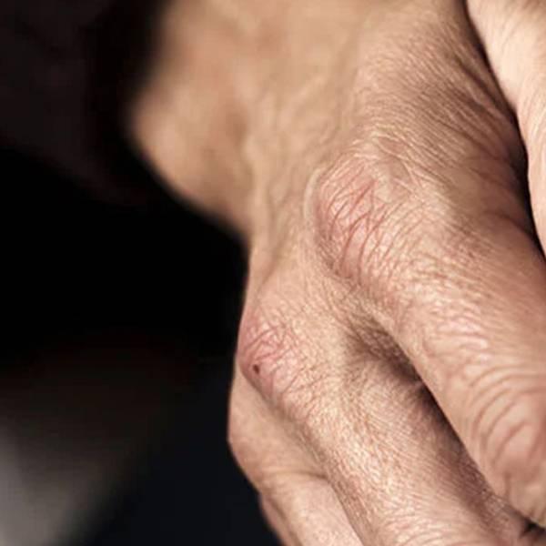 Plamy na dłoniach | 3 sposoby na starcze plamy na dłoniach - La Roche-Posay