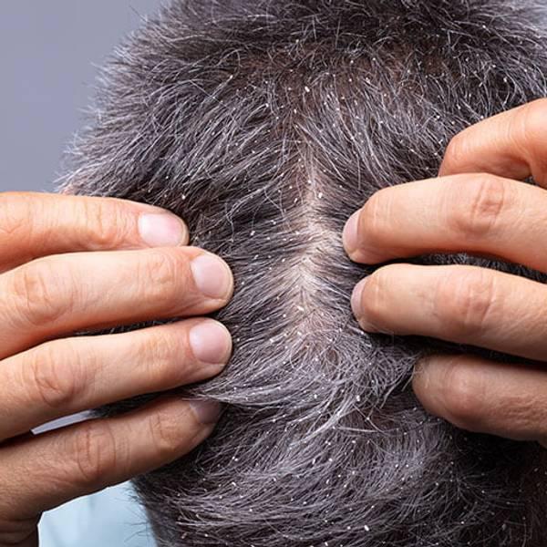 Jak nawilżyć skórę głowy domowe sposoby | Jak nawilżyć skórę głowy - 5 sprawdzonych rad! - La Roche-Posay