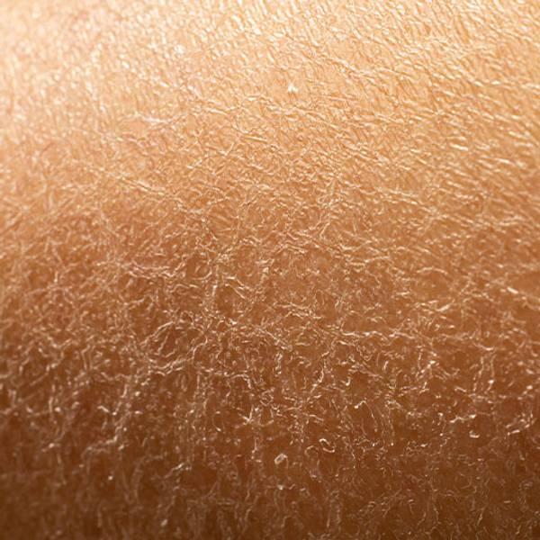 Choroba Hashimoto - objawy   Choroba Hashimoto - prawidłowa pielęgnacja skóry - La Roche-Posay
