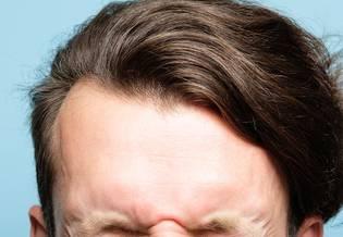 Wrażliwa Włosy i skóra głowy podstawy | La Roche Posay 1