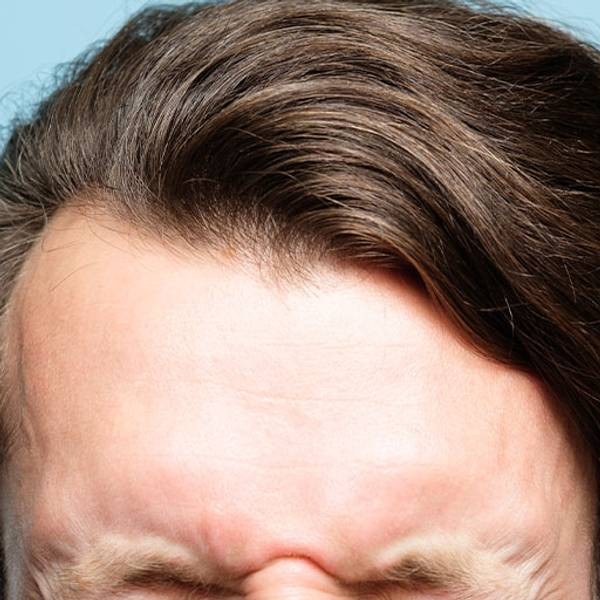 Łuszczyca głowy szampon  | Mycie włosów - czyli jak dbać o skórę z łuszczycą? - La Roche Posay